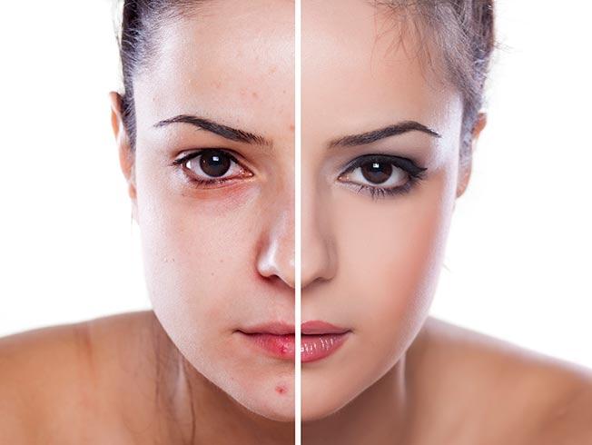 maquillaje para piel con imperfecciones
