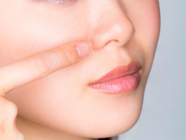Cómo minimizar los poros dilatados