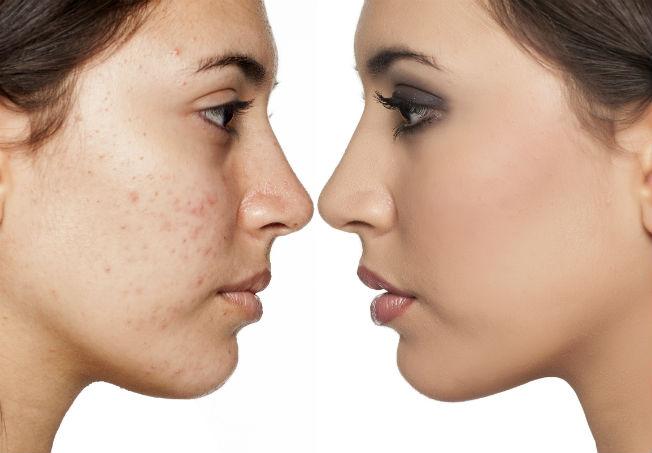 infeccion en la cara por acne