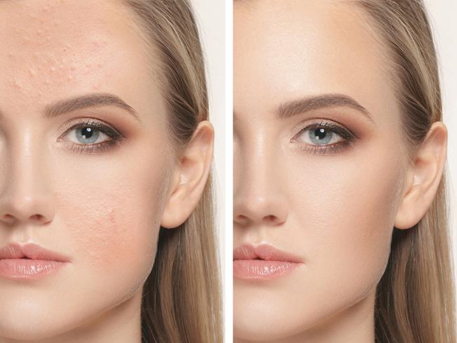 Bases de maquillaje para pieles con acné