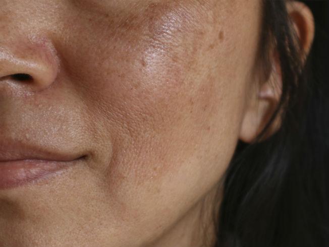crema para manchas marrones en la cara