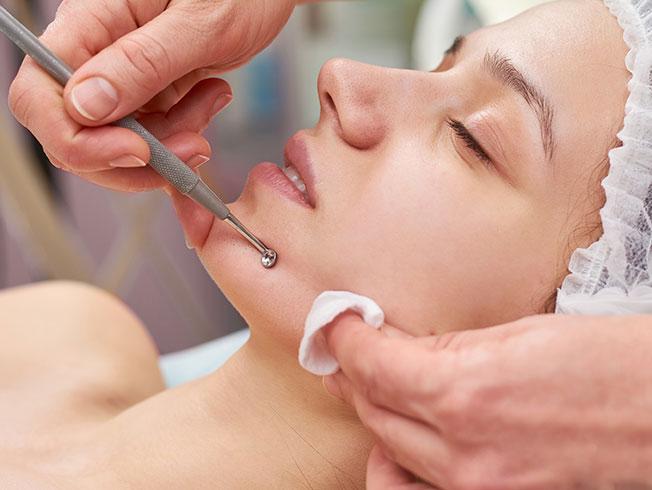 Limpieza facial en casa: eliminar los puntos negros, paso a paso