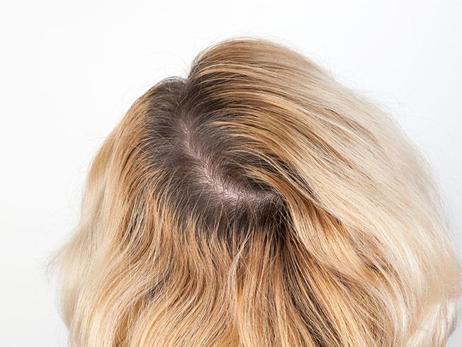 Trucos para prolongar la coloración del cabello durante el confinamiento (retoque de raíces)